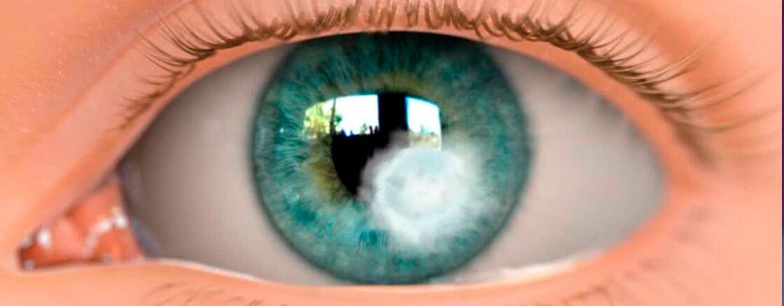 Úlcera de Córnea: Doença que pode levar a cegueira